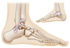 13_High-Ankle-Sprain-2-300x208.jpg