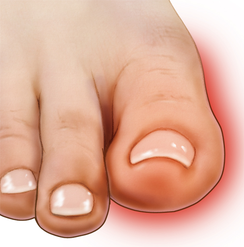 Use our blog post to investigate what's causing your big toe pain