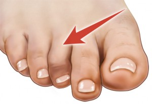 Hammertoe — Causes, Symptoms, and Treatment