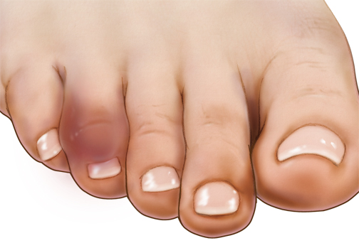 what are good home remedies for gout sore toe joint not gout