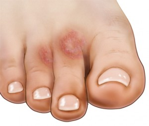 Tiny red spots on toes - Doctor answers on HealthcareMagic