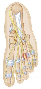 foot neuroma