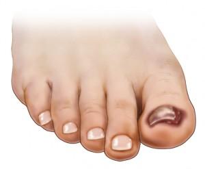 toenail falling off