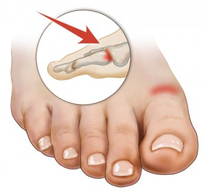 diet plan for gout pdf high uric acid red wine high levels of uric acid in the blood may lead to