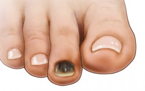 Black Toenail — Causes, Treatment, and Prevention