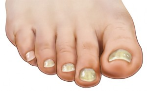 What Causes Yellow Toenails