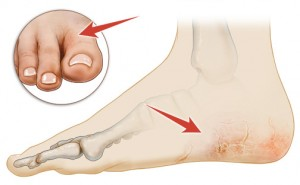 dry cracked feet treatment causes and home remedies rh footvitals com Itchy Red Heels Itchy Bumps On Ankles and Feet