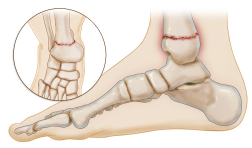 Broken Ankle: Symptoms, Diagnosis, and Treatment
