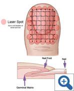 Laser treatment for toenail fungus