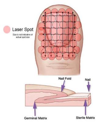 Laser Spot