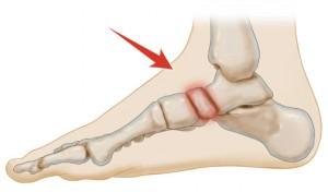 pijn aan de zijkant van mijn voet