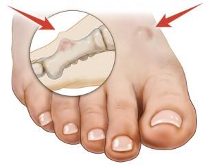 Bone Tumor Of The Foot