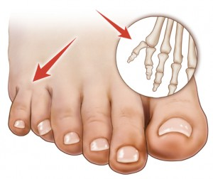 Polydactyly of the Feet