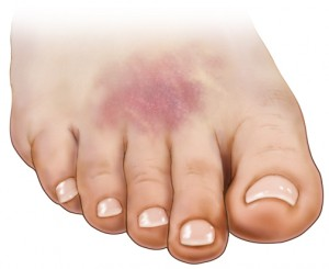 Muscle Contusion of The Foot - What You Can Do