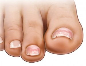 Brittle Toenails: Causes and Treatment Options