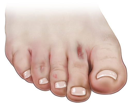 Severe athletes foot